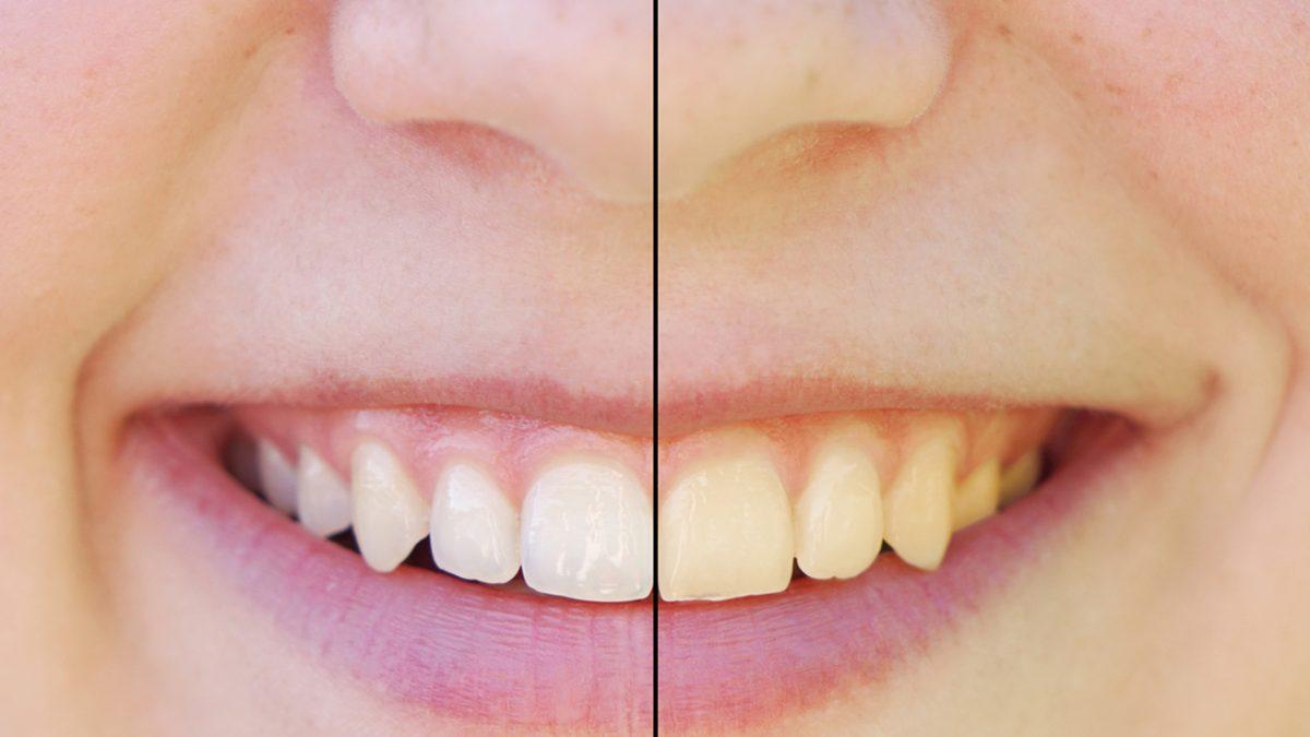 Hur får man vitare tänder?